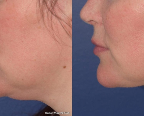 DOUBLE CHIN SUCTION (COSMETIC SURGERY)